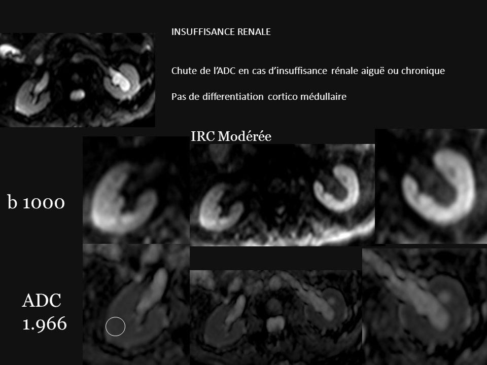 b 1000 IRC Modérée ADC 1.966 INSUFFISANCE RENALE Chute de lADC en cas dinsuffisance rénale aiguë ou chronique Pas de differentiation cortico médullair