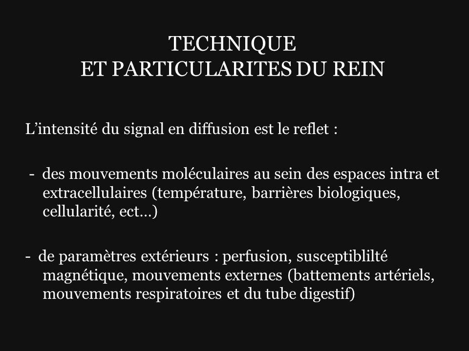 Lintensité du signal en diffusion est le reflet : - des mouvements moléculaires au sein des espaces intra et extracellulaires (température, barrières
