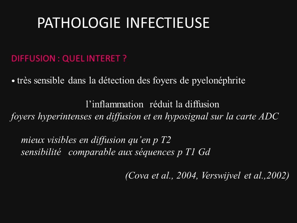 DIFFUSION : QUEL INTERET ? très sensible dans la détection des foyers de pyelonéphrite linflammation réduit la diffusion foyers hyperintenses en diffu