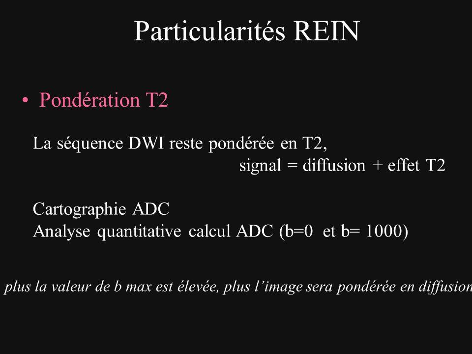 Particularités REIN Pondération T2 La séquence DWI reste pondérée en T2, signal = diffusion + effet T2 Cartographie ADC Analyse quantitative calcul AD