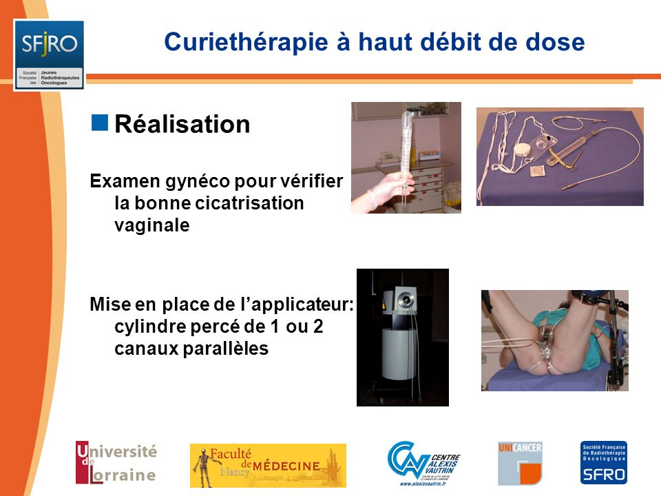 Curiethérapie à haut débit de dose Réalisation Examen gynéco pour vérifier la bonne cicatrisation vaginale Mise en place de lapplicateur: cylindre per
