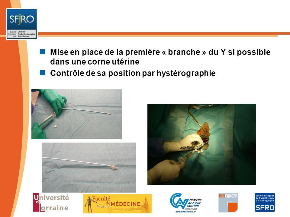Mise en place de la première « branche » du Y si possible dans une corne utérine Contrôle de sa position par hystérographie