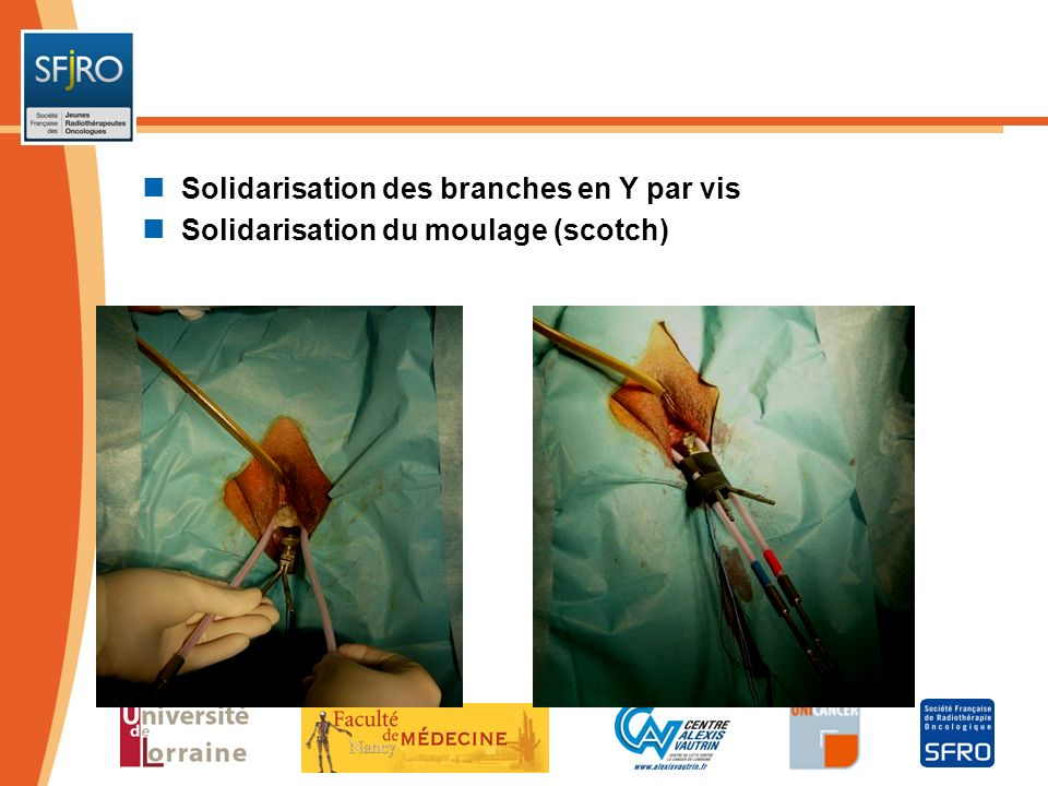 Solidarisation des branches en Y par vis Solidarisation du moulage (scotch)