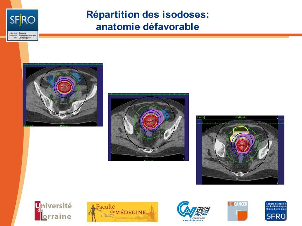 Répartition des isodoses: anatomie défavorable