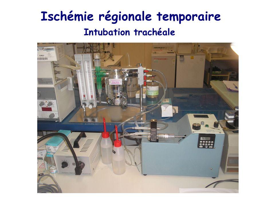 Ischémie régionale temporaire Intubation trachéale
