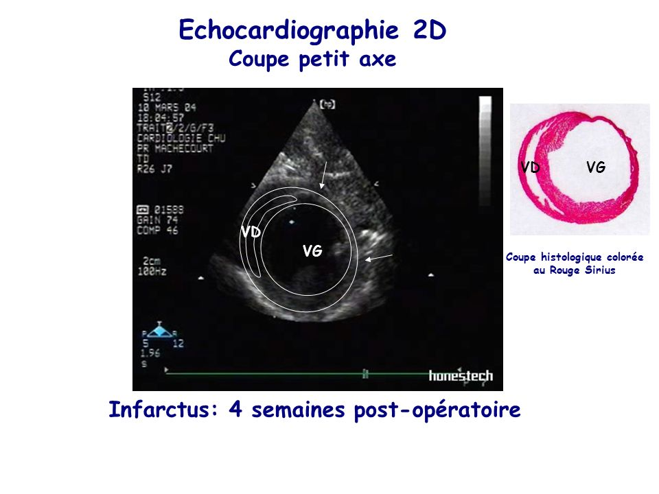 Coupe histologique colorée au Rouge Sirius Infarctus: 4 semaines post-opératoire Echocardiographie 2D Coupe petit axe VGVD VG VD