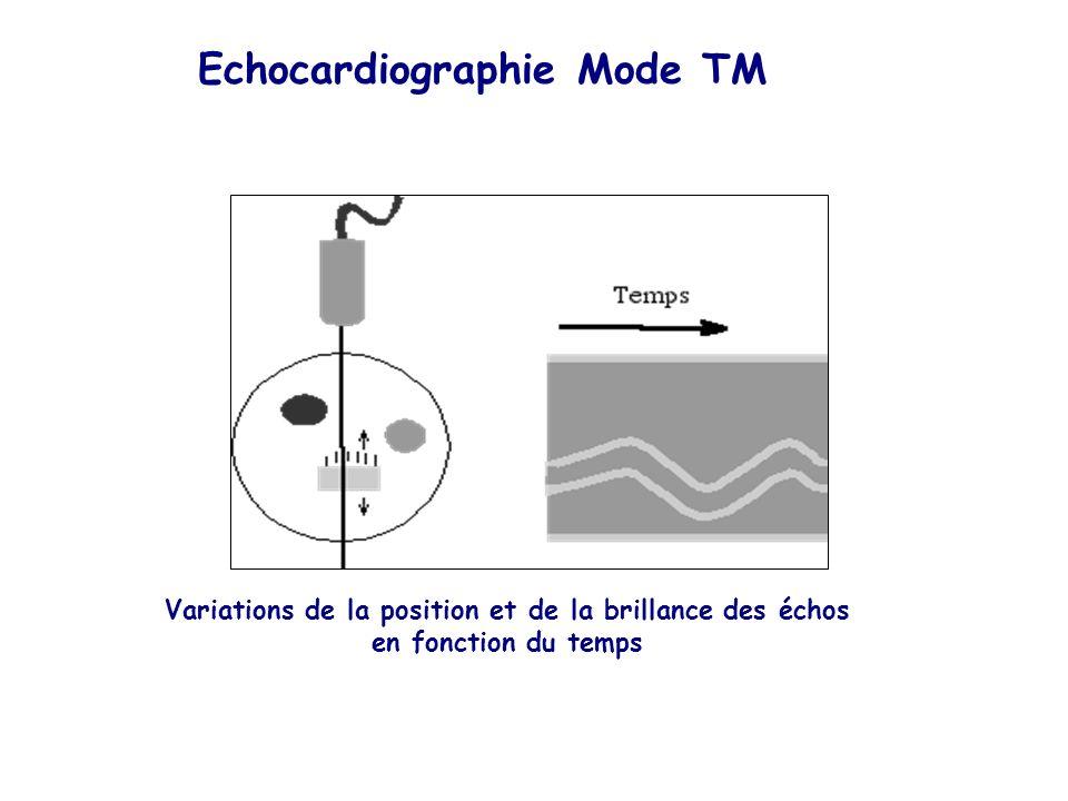 Variations de la position et de la brillance des échos en fonction du temps Echocardiographie Mode TM