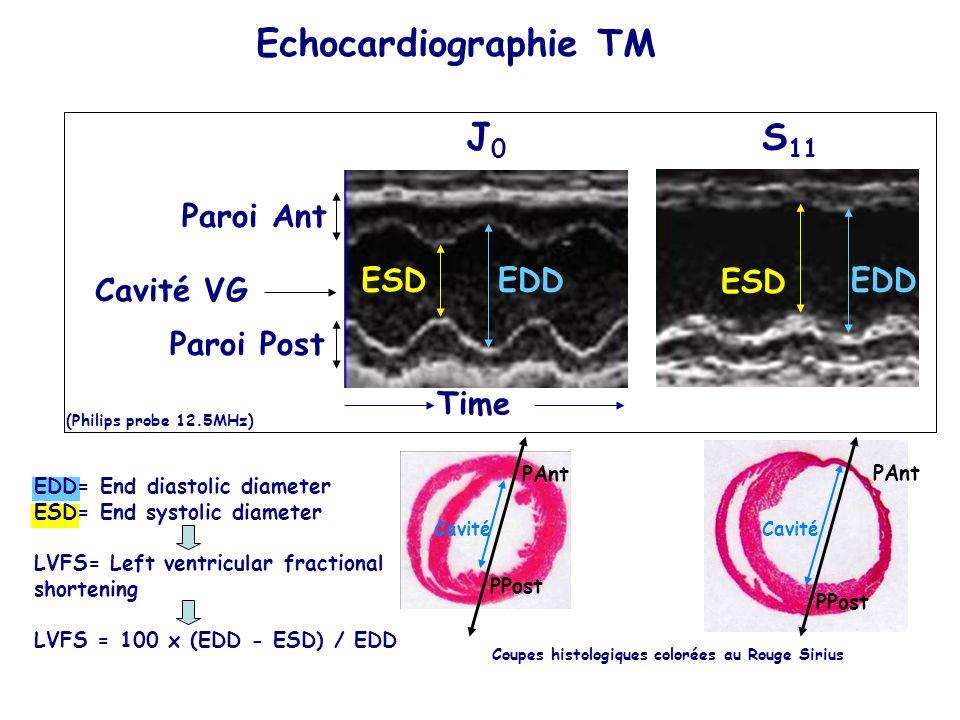 Paroi Ant Cavité VG Time J0J0 S 11 (Philips probe 12.5MHz) EDDESDEDD ESD EDD= End diastolic diameter ESD= End systolic diameter LVFS= Left ventricular