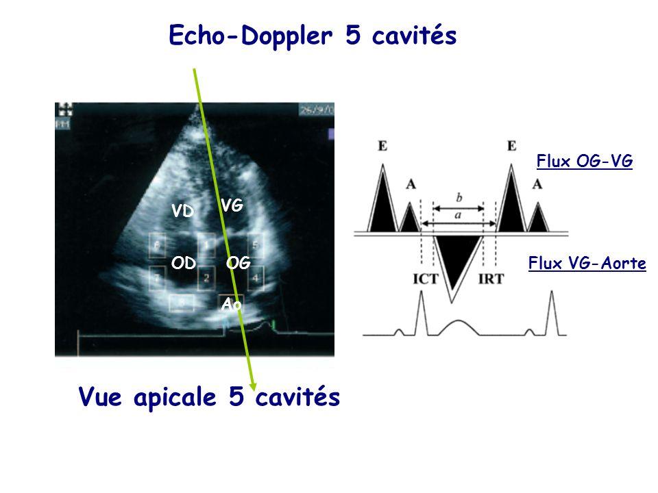 Echo-Doppler 5 cavités Vue apicale 5 cavités Flux OG-VG Flux VG-Aorte VG OGOD VD Ao