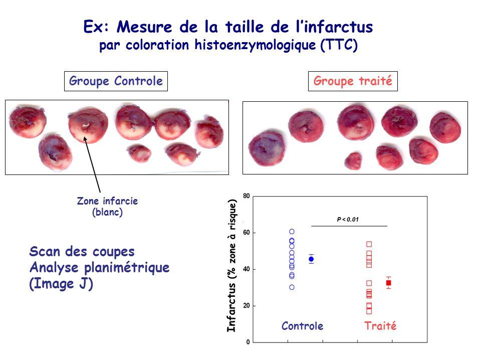 Groupe ControleGroupe traité Ex: Mesure de la taille de linfarctus par coloration histoenzymologique (TTC) Infarctus (% zone à risque) ControleTraité