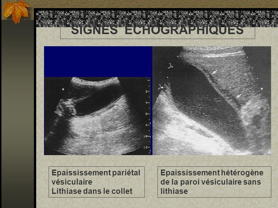 Epaississement hétérogène de la paroi vésiculaire sans lithiase Epaississement pariétal vésiculaire Lithiase dans le collet SIGNES ECHOGRAPHIQUES