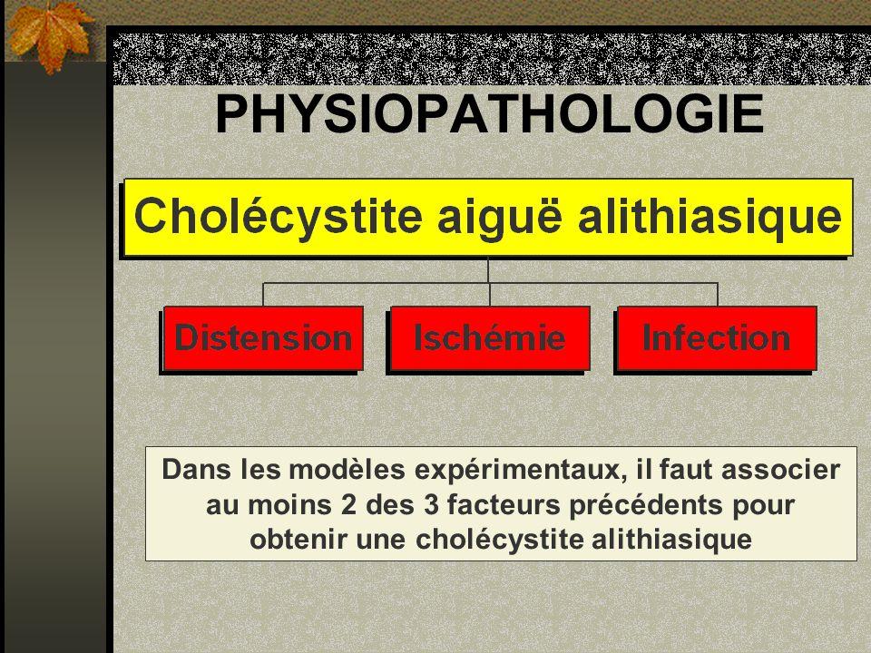 Cholécystite alithiasique SIGNES ECHOGRAPHIQUES