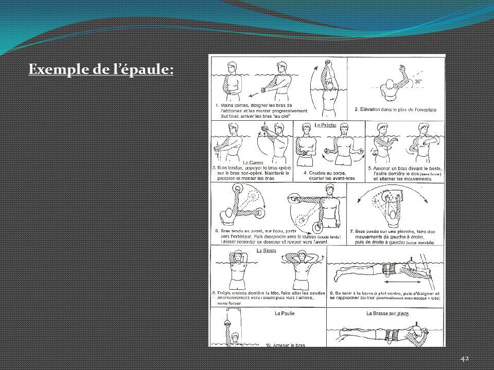 42 Exemple de lépaule: