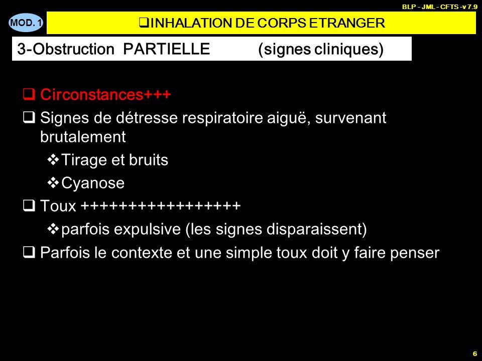 MOD. 1 BLP - JML - CFTS -v 7.9 6 INHALATION DE CORPS ETRANGER Circonstances+++ Signes de détresse respiratoire aiguë, survenant brutalement Tirage et