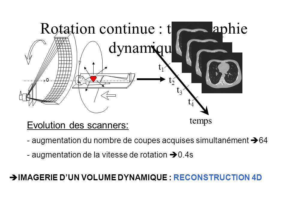 Rotation continue : tomographie dynamique IMAGERIE DUN VOLUME DYNAMIQUE : RECONSTRUCTION 4D Evolution des scanners: - augmentation du nombre de coupes