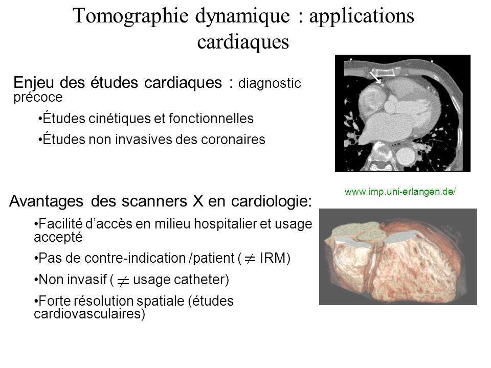Tomographie dynamique : applications cardiaques Enjeu des études cardiaques : diagnostic précoce Études cinétiques et fonctionnelles Études non invasi