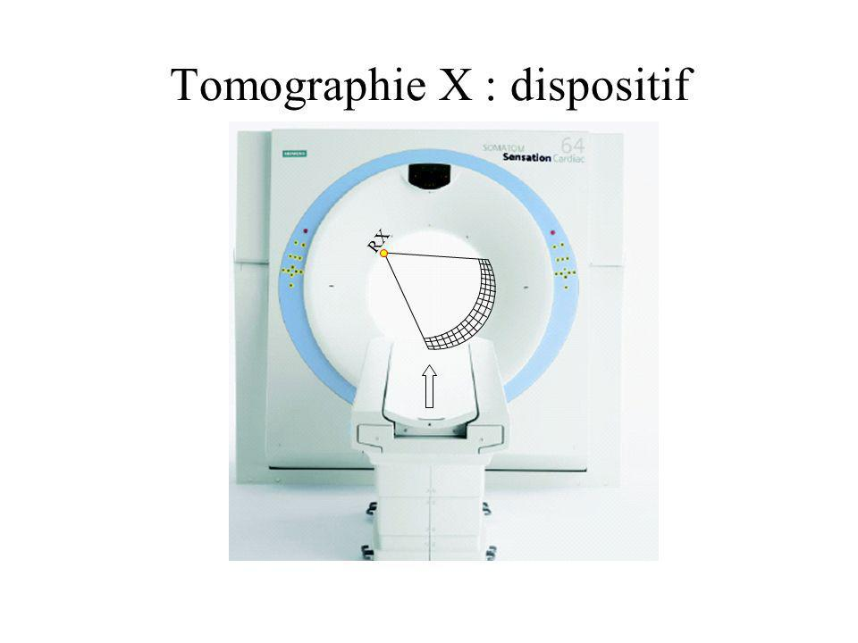 Tomographie X : dispositif dacquisition RX