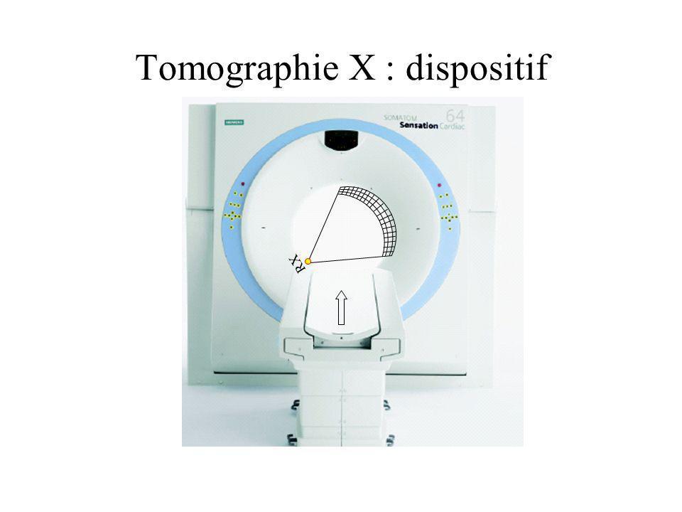 Rotation continue : tomographie dynamique IMAGERIE DUN VOLUME DYNAMIQUE : RECONSTRUCTION 4D Evolution des scanners: - augmentation du nombre de coupes acquises simultanément 64 - augmentation de la vitesse de rotation 0.4s temps t1t1 t2t2 t3t3 t4t4 O