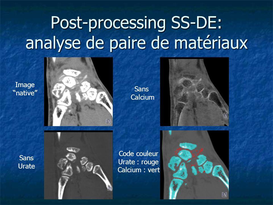 Post-processing SS-DE: analyse de paire de matériaux Image native Sans Calcium Sans Urate Code couleur Urate : rouge Calcium : vert