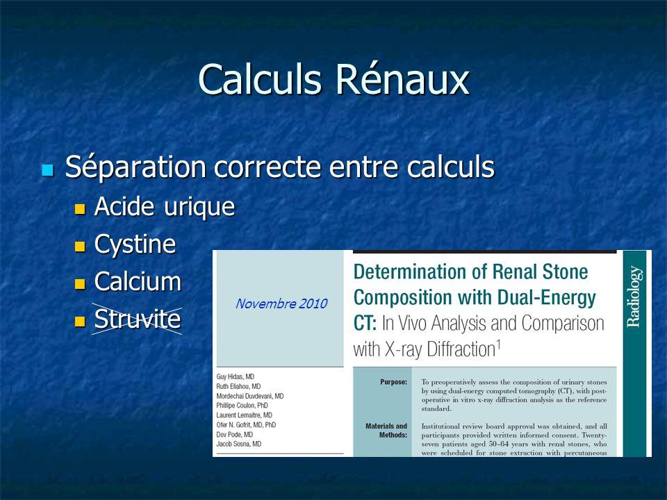 Calculs Rénaux Séparation correcte entre calculs Séparation correcte entre calculs Acide urique Acide urique Cystine Cystine Calcium Calcium Struvite