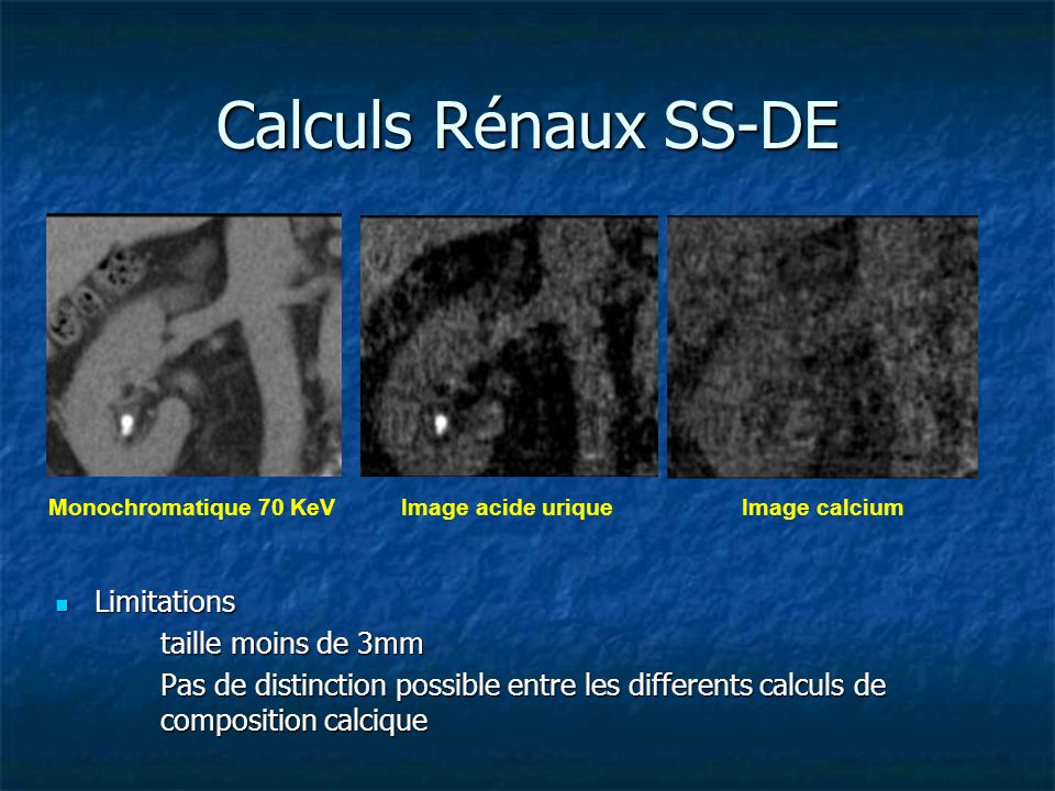 Limitations Limitations taille moins de 3mm Pas de distinction possible entre les differents calculs de composition calcique Image acide uriqueImage c