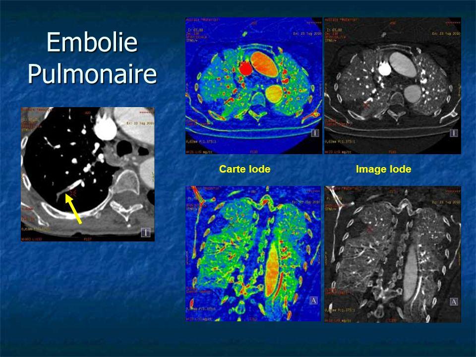 Carte IodeImage Iode Embolie Pulmonaire