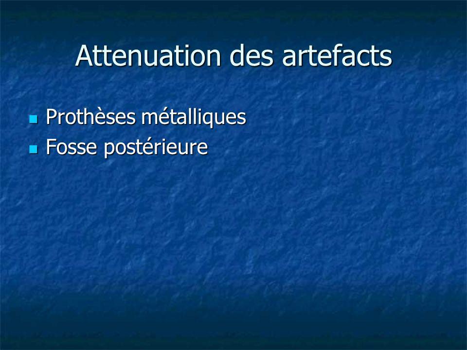 Attenuation des artefacts Prothèses métalliques Prothèses métalliques Fosse postérieure Fosse postérieure