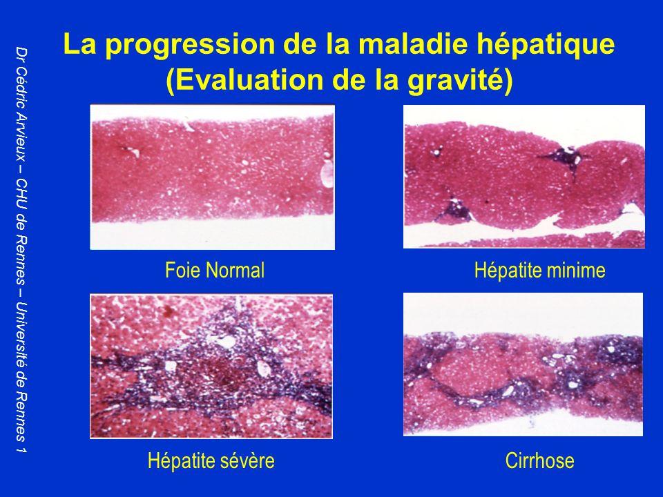 La progression de la maladie hépatique (Evaluation de la gravité) Foie NormalHépatite minime Hépatite sévèreCirrhose Dr Cédric Arvieux – CHU de Rennes