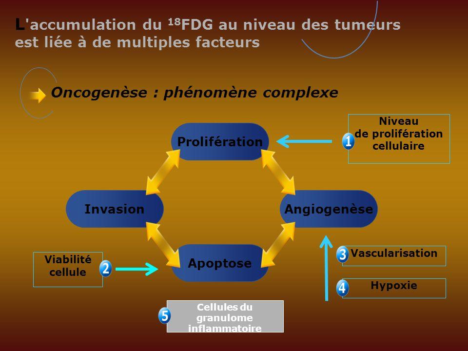 L 'accumulation du 18 FDG au niveau des tumeurs est liée à de multiples facteurs Prolifération Oncogenèse : phénomène complexe InvasionAngiogenèse Apo