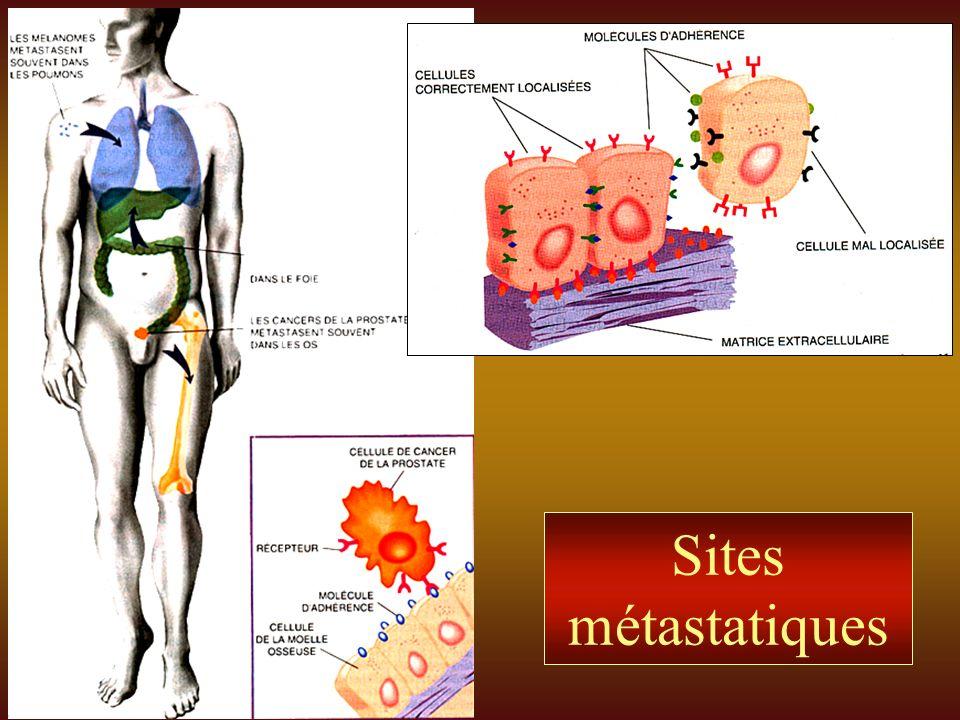 Sites métastatiques