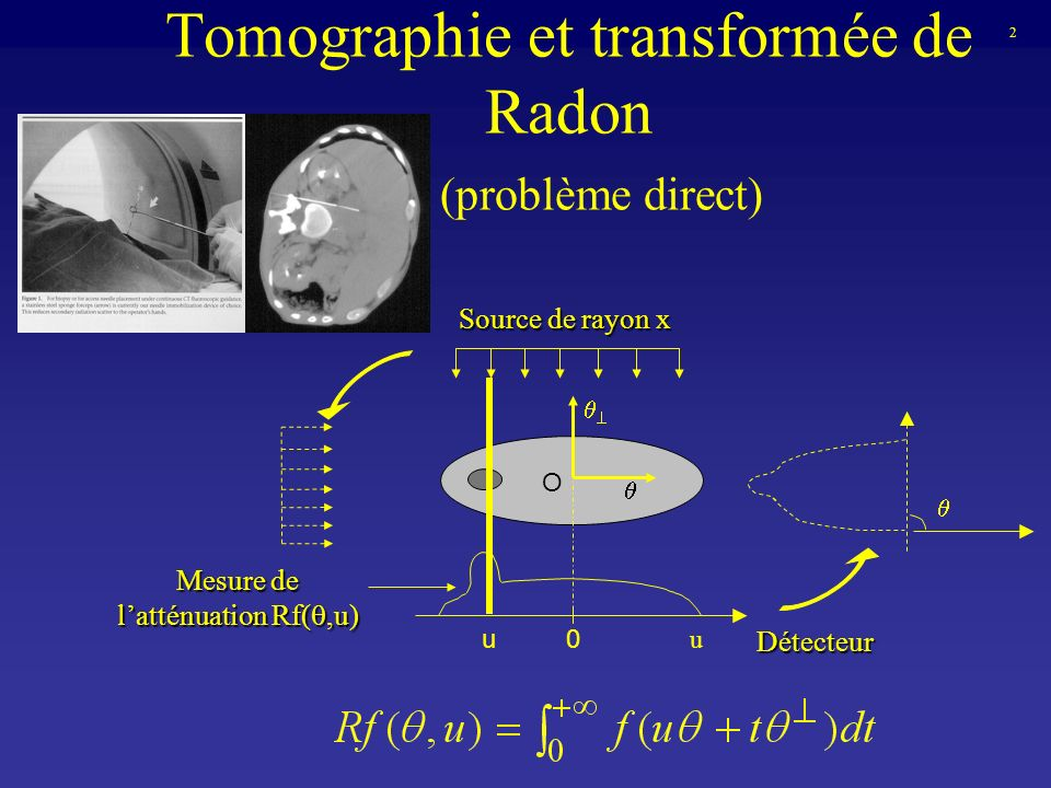 Tomographie et transformée de Radon (problème direct) Source de rayon x Détecteur Mesure de latténuation Rf(,u) u 2 u0 O