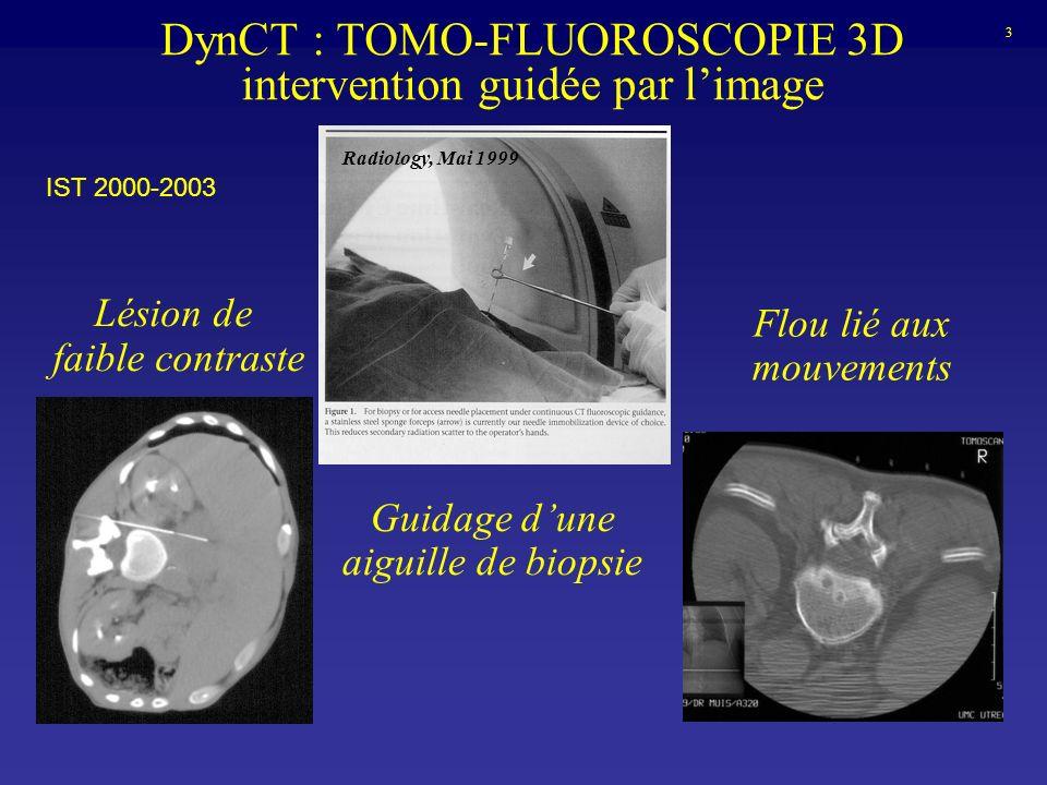 DynCT : TOMO-FLUOROSCOPIE 3D intervention guidée par limage Radiology, Mai 1999 Lésion de faible contraste Guidage dune aiguille de biopsie Flou lié a