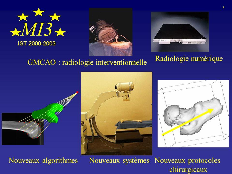 MI3 Nouveaux algorithmesNouveaux systèmes Nouveaux protocoles chirurgicaux 4 GMCAO : radiologie interventionnelle Radiologie numérique IST 2000-2003
