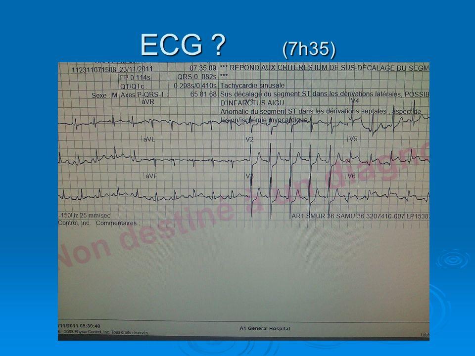 ECG ? (7h35)