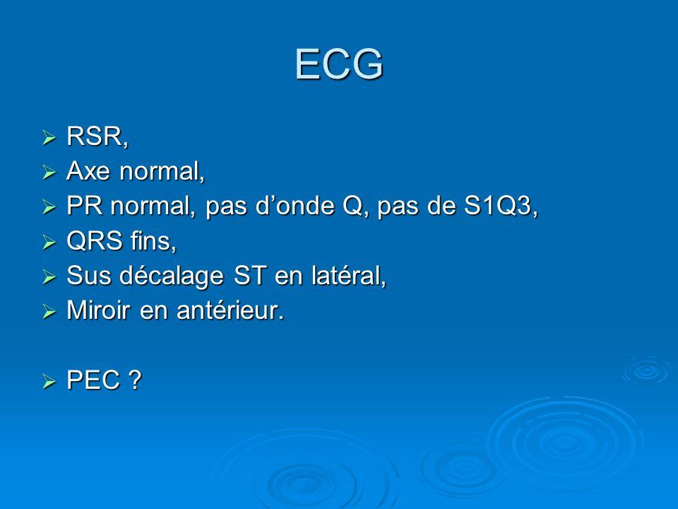 ECG RSR, RSR, Axe normal, Axe normal, PR normal, pas donde Q, pas de S1Q3, PR normal, pas donde Q, pas de S1Q3, QRS fins, QRS fins, Sus décalage ST en
