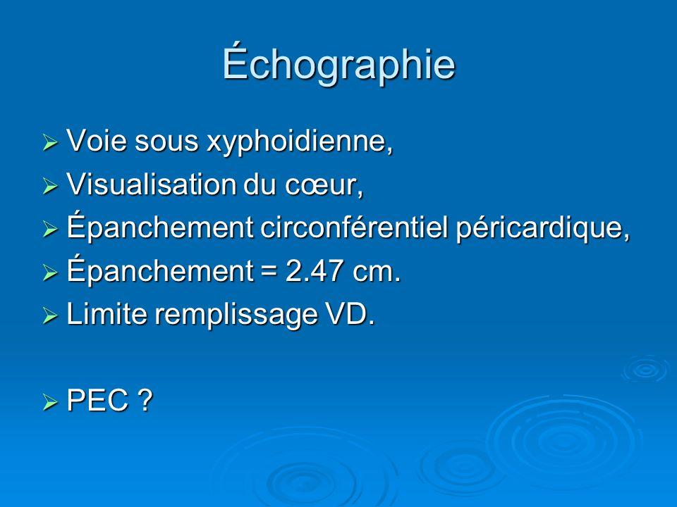 Échographie Voie sous xyphoidienne, Voie sous xyphoidienne, Visualisation du cœur, Visualisation du cœur, Épanchement circonférentiel péricardique, Ép