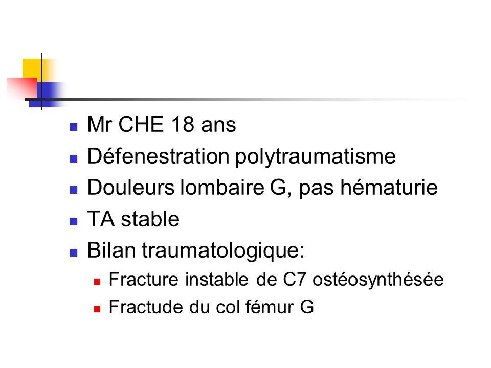 Scanner abdominal en urgences: 1- diagnostic ?