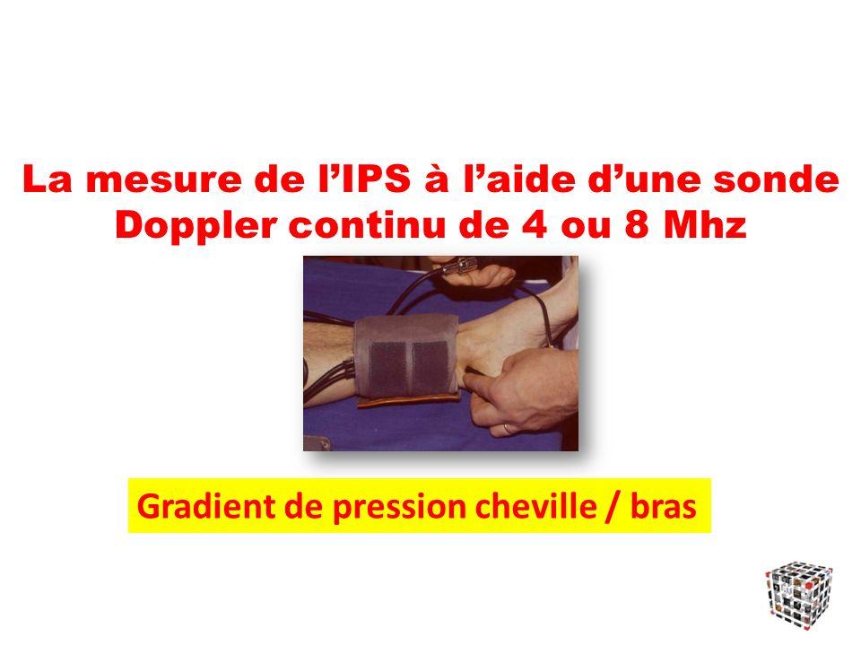 La mesure de lIPS à laide dune sonde Doppler continu de 4 ou 8 Mhz Gradient de pression cheville / bras