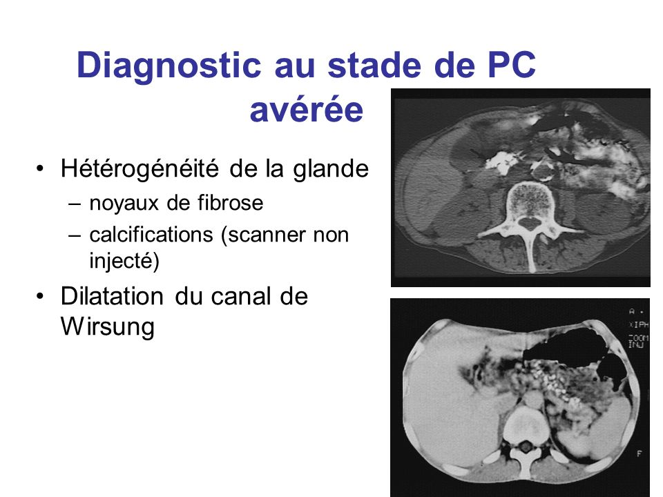 Diagnostic au stade de PC avérée Hétérogénéité de la glande –noyaux de fibrose –calcifications (scanner non injecté) Dilatation du canal de Wirsung