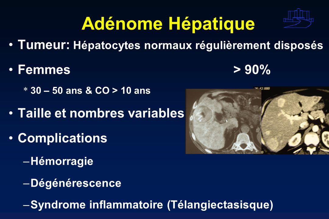 Adénome Hépatique Tumeur: Hépatocytes normaux régulièrement disposés Femmes> 90% * 30 – 50 ans & CO > 10 ans Taille et nombres variables Complications