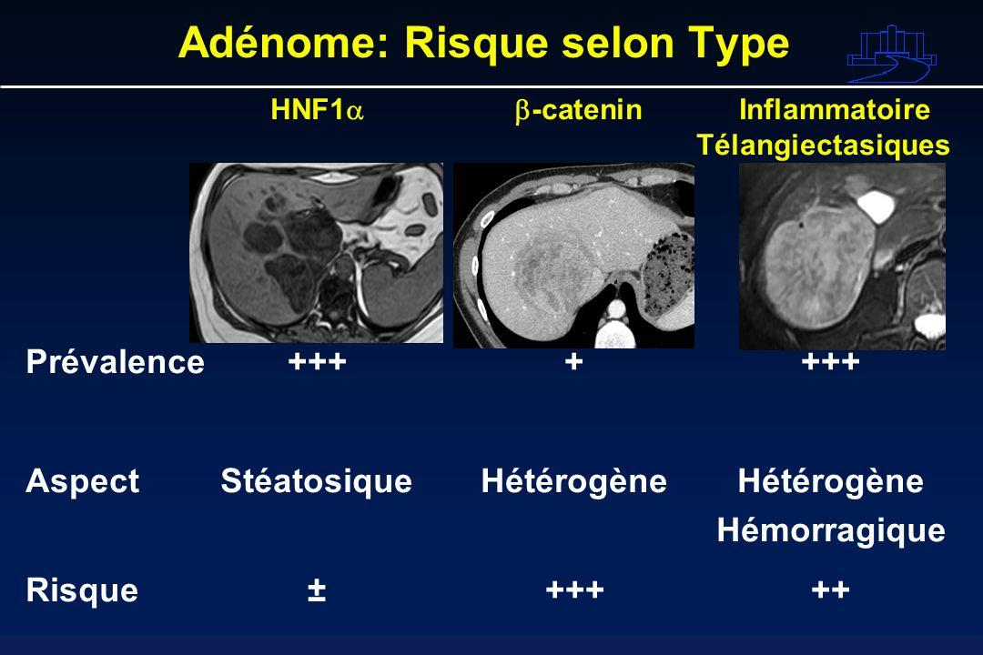 HNF1 -catenin Inflammatoire Télangiectasiques Prévalence +++++++ AspectStéatosiqueHétérogèneHétérogène Hémorragique Risque±+++++ Adénome: Risque selon