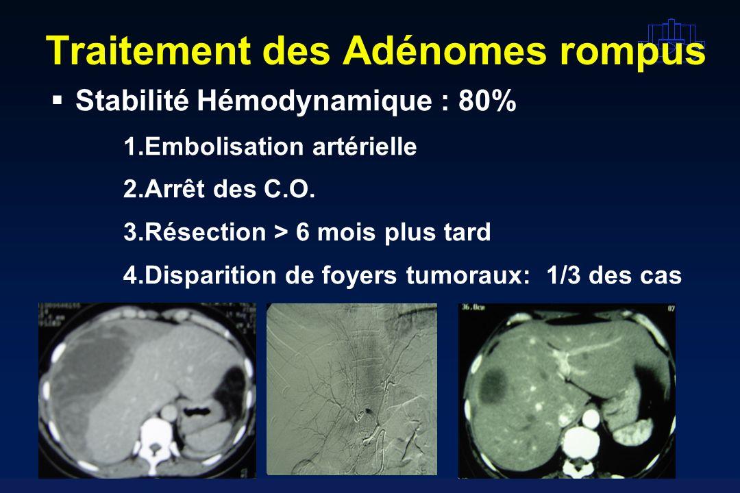Traitement des Adénomes rompus Stabilité Hémodynamique : 80% 1.Embolisation artérielle 2.Arrêt des C.O. 3.Résection > 6 mois plus tard 4.Disparition d