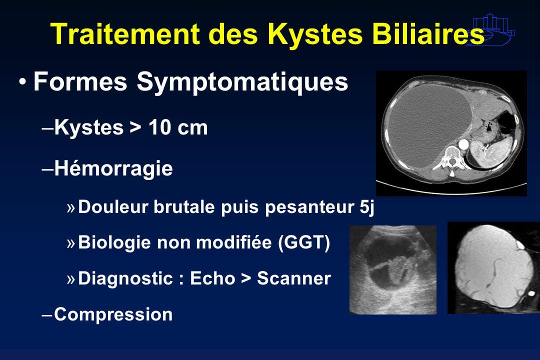Traitement des Kystes Biliaires Formes Symptomatiques –Kystes > 10 cm –Hémorragie »Douleur brutale puis pesanteur 5j »Biologie non modifiée (GGT) »Dia