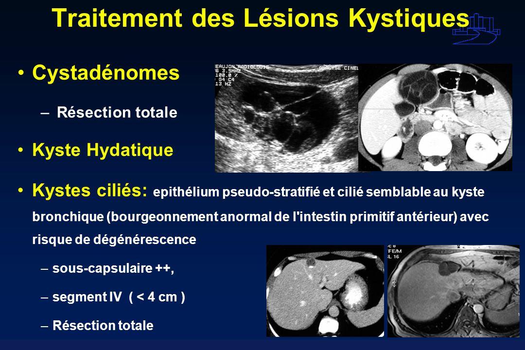 Traitement des Lésions Kystiques Cystadénomes – Résection totale Kyste Hydatique Kystes ciliés: epithélium pseudo-stratifié et cilié semblable au kyst