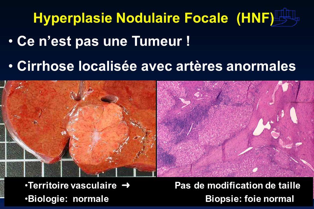 Hyperplasie Nodulaire Focale (HNF) Ce nest pas une Tumeur ! Cirrhose localisée avec artères anormales Territoire vasculaire Pas de modification de tai