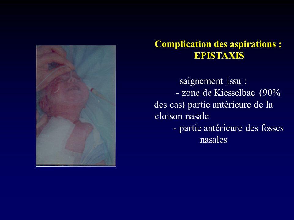 Complication des aspirations : EPISTAXIS saignement issu : - zone de Kiesselbac (90% des cas) partie antérieure de la cloison nasale - partie antérieu
