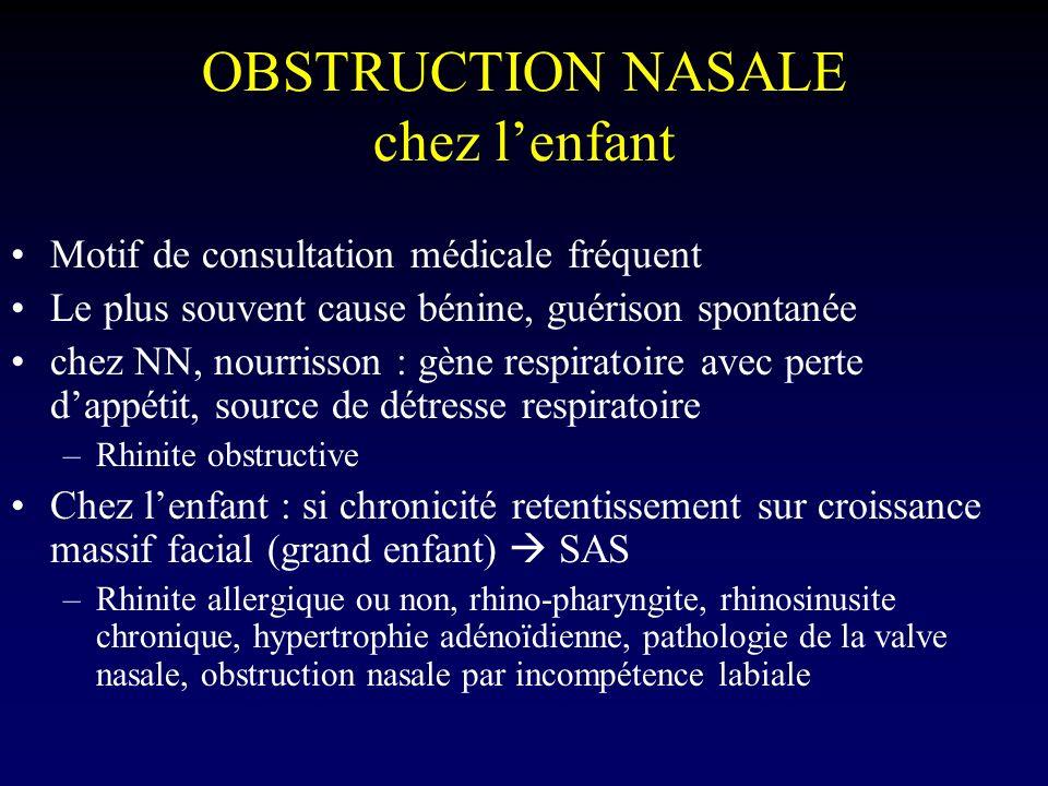 OBSTRUCTION NASALE chez lenfant Motif de consultation médicale fréquent Le plus souvent cause bénine, guérison spontanée chez NN, nourrisson : gène re
