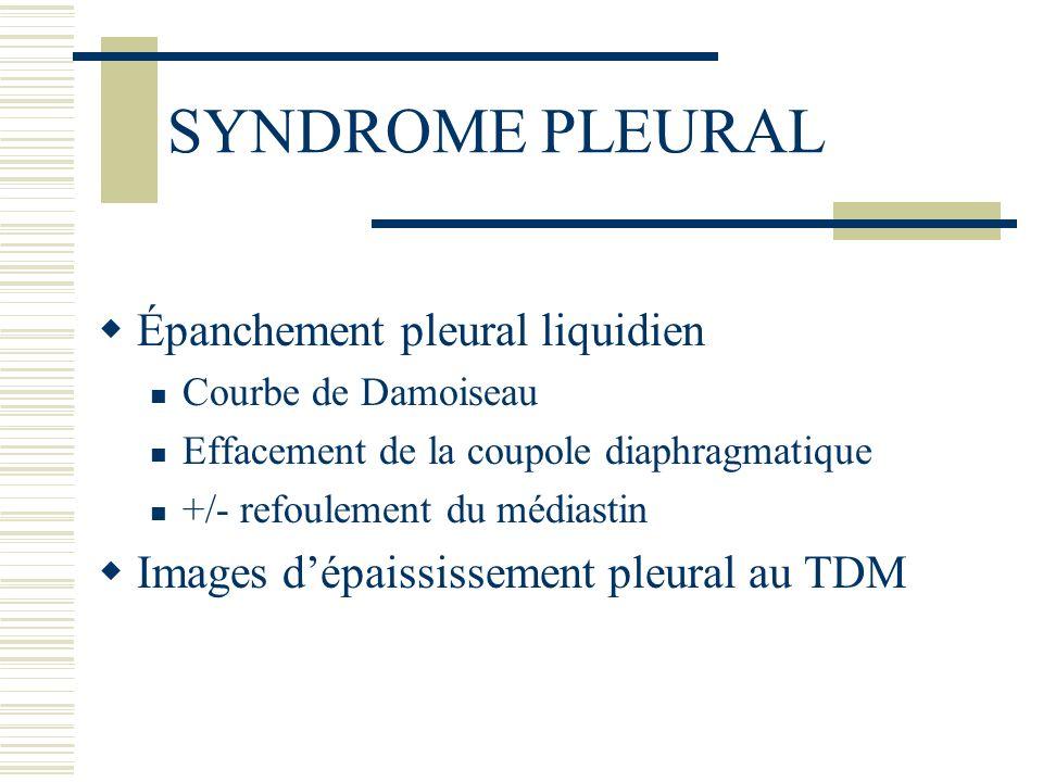 PONCTION PLEURALE / DRAINAGE Diagnostic dans 45 à 70% des cas Type histologique rarement établi Liquide pleural hémorragique 60% des épanchements hémorragiques sont des cancers 60% des épanchements tumoraux sont hémorragiques