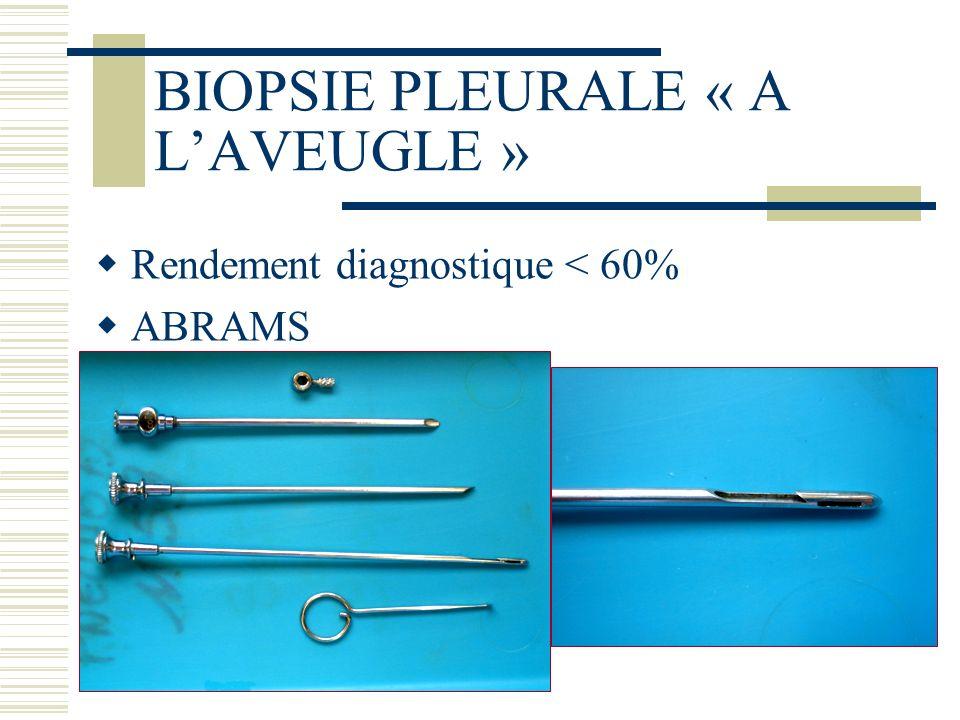 Shaw P Cochrane Database Syst rev 2004 Vidéothoracoscopie Vs instillation de talc par le drain 112 patients Résultats en faveur de la thoracoscopie RR 1,19 (IC 95% 1,04 à 1,36) Pas de différence de mortalité