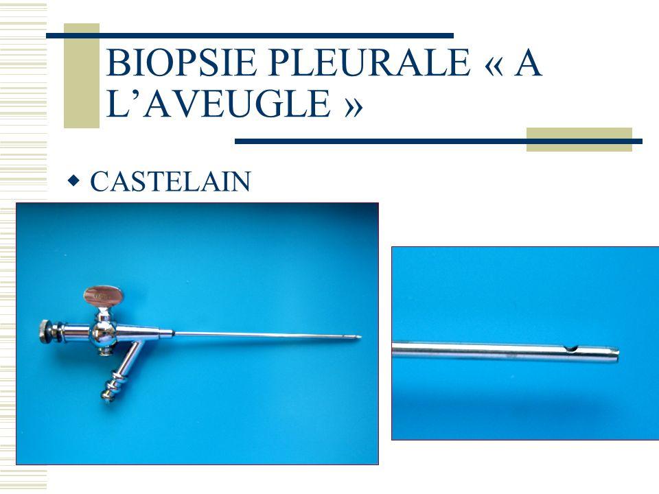 BIOPSIE PLEURALE « A LAVEUGLE » CASTELAIN